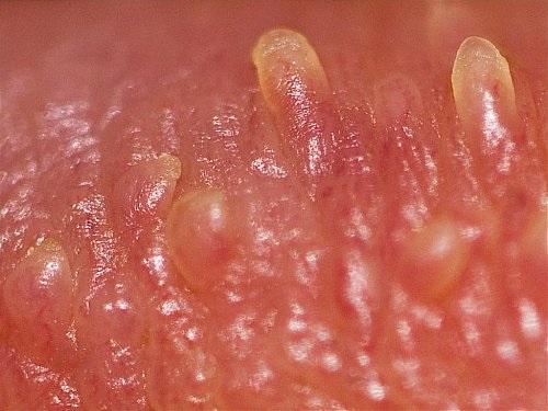 Triệu chứng mụn cóc sinh dục và cách chữa
