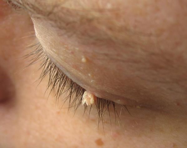 Mụn thịt quanh mắt có phải bị sùi mào gà không?